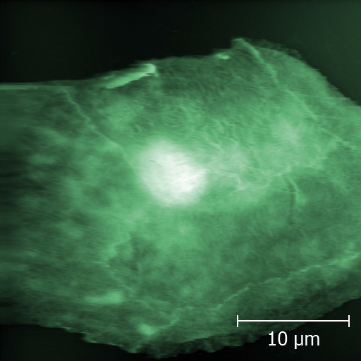 Cheek cell imaged by AFM in liquid environment